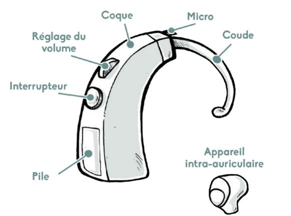 Schéma appareil auditif