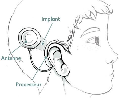 Schéma implant cochléaire